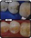 Filling Before and After